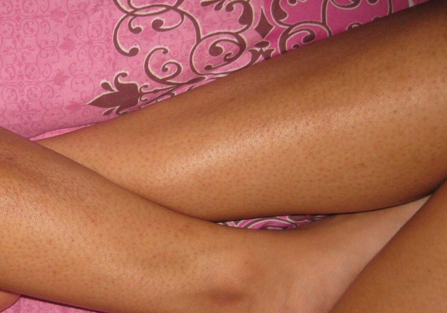 Say Goodbye To Annoying Dark Pores On Your Legs With This Simple Homemade Formula!