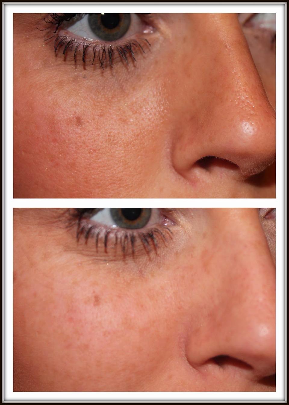 Shrink Large Pores On Face!   Trusper