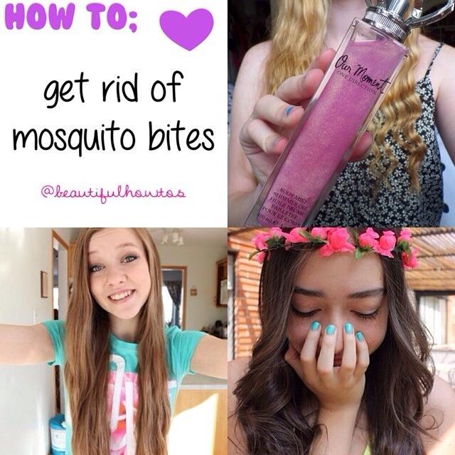 How To Get Rid Of Mosquito Bites Trusper