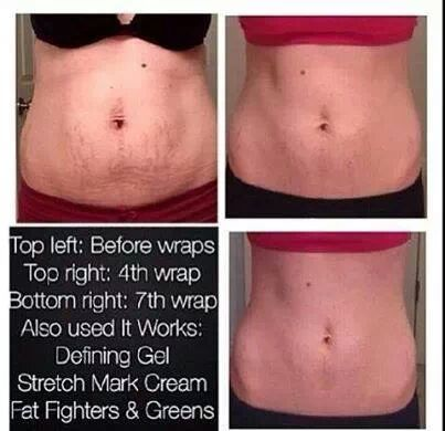 how to get rid of stretch marks on your butt