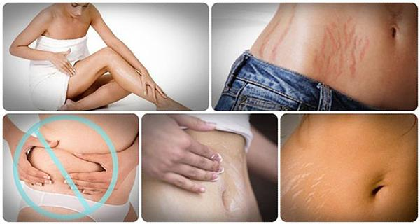 Naturally And Fast Way To Get Rid Of Stretch Marks #tidytip
