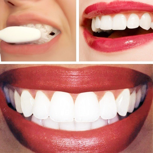 Get White Teeth!! 😁