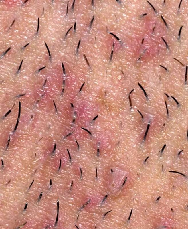 Get Rid Of Ingrown Hair Trusper