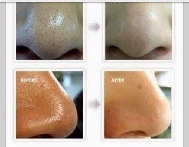 how to get blackheads away
