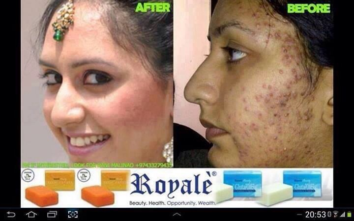 how to get rid of pimples in 1 week