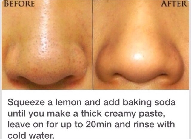 Get Rid Of Blackheads And Pores Easily