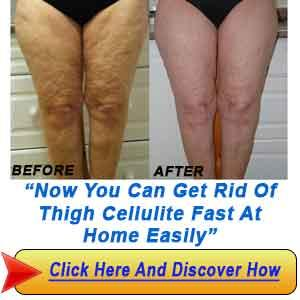 how to get rid of butt cellulitw