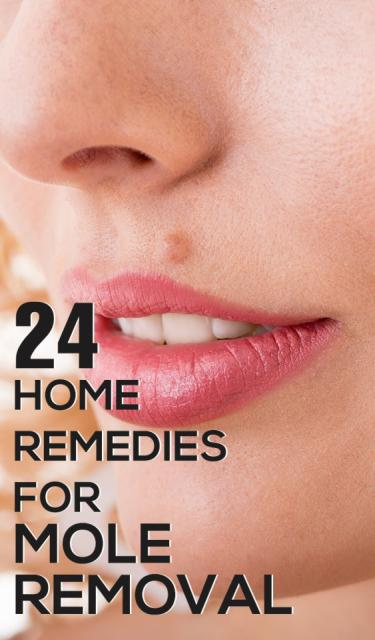 Top Tips For Natural Mole Removal Remedies