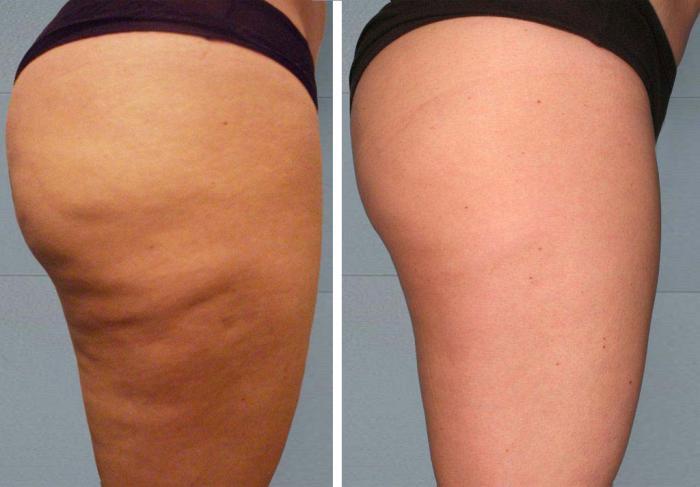 DIY Anti-Cellulite Cream And Coffee Scrub 💗 #tipit