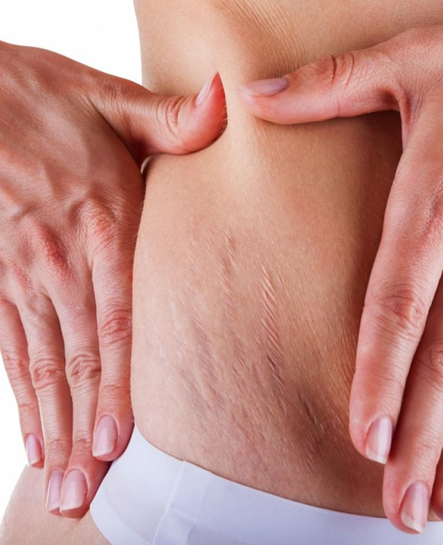 Have Lovely Stretch Marks?