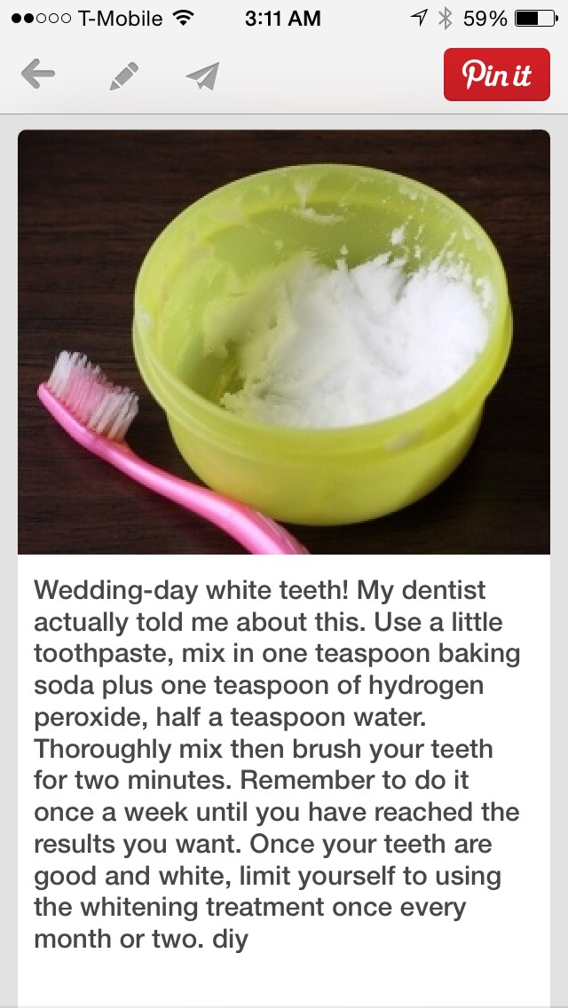 Make Your Teeth Whiter At Home!I Used It On Myself, Teeth Started To Look White In 1 Week ! Repost!
