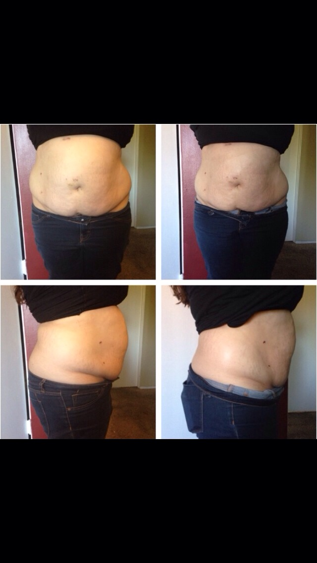 You Can Tighten, Tone & Firm In As Little As 45 Minutes For Only $25!!!